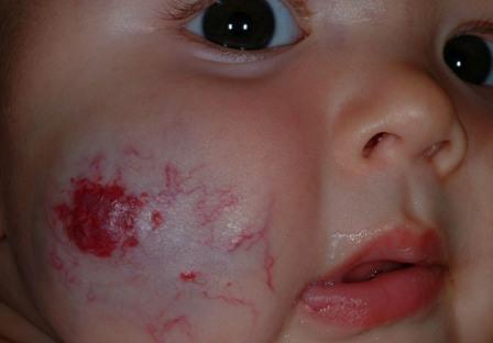define birthmark