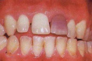 Intrinsic teeth stains