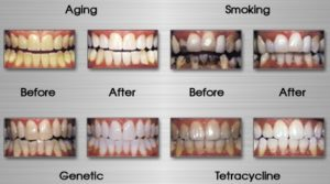 Teeth stains causes and treatment