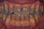 Tetracycline teeth stains