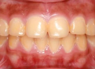 Yellow teeth stains