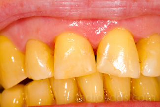 Teeth Stains, Types, Causes, Pictures, Prevention ...