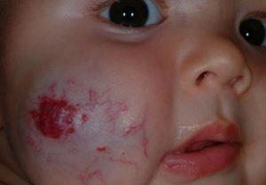 Strawberry birthmark on cheek