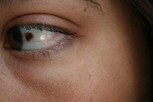 Birthmark on eye