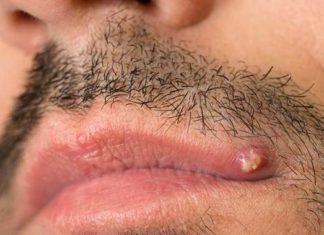 Pimple on upper lip