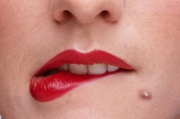 Pimple on lip line upper lower above around inside under pimple under lip below lip on lower lip ccuart Images