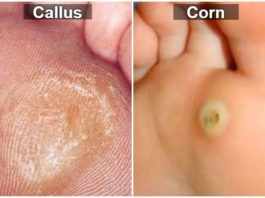 Difference between a corn and a callus