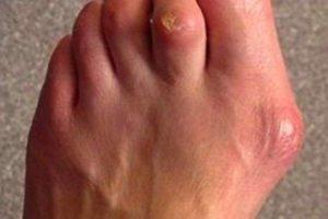Foot deformities may cause foot corns