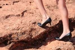 Walking on slope may cause foot corns