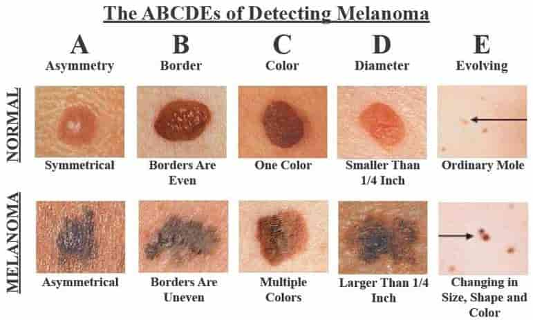 ABCDEs of melanoma - mole on breast
