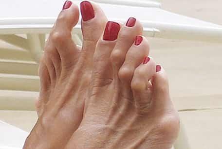 Hammer toe deformity