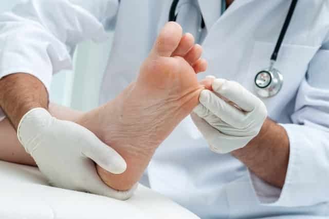 A podiatrist examining corns between toes