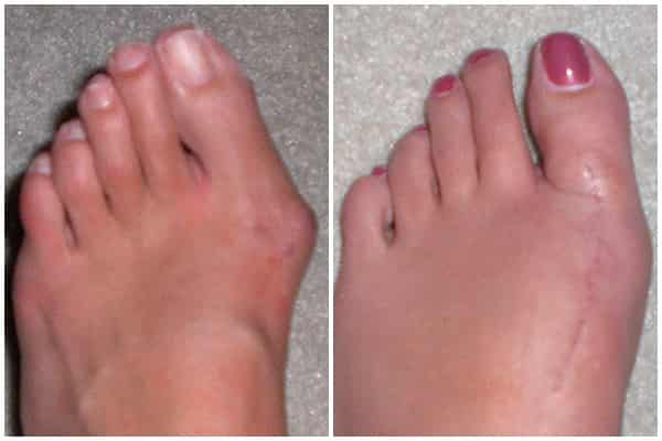 Bunion deformity reconstruction surgery before after