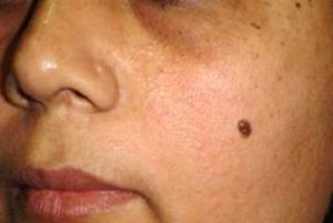 Mole meaning on the left cheek - arrogance and introvert behavior