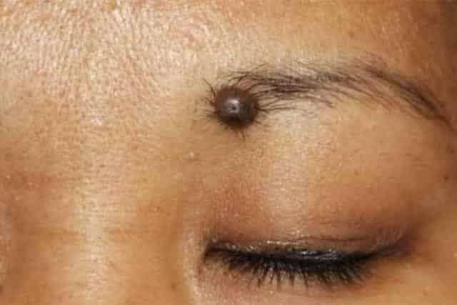 Mole below right eye meaning