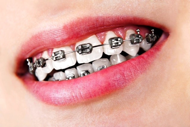 Braces can cause of white spots on teeth