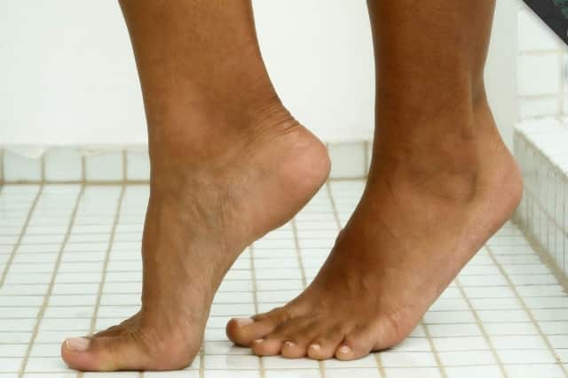 Difficulty in walking on tiptoes is a symptom of pain in arch of foot