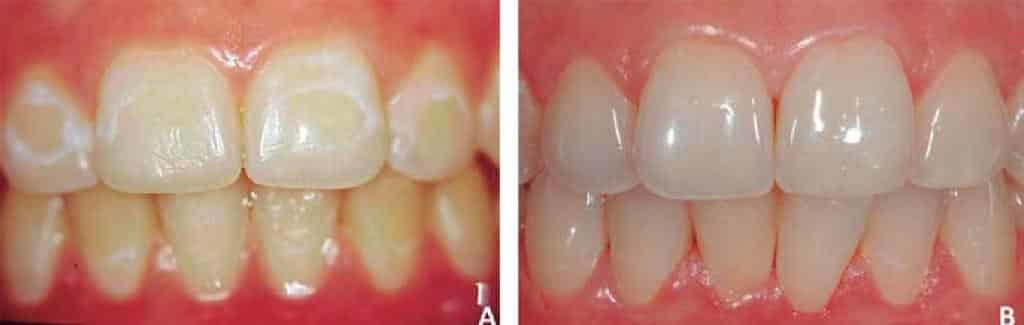 How to get rid of white spots on teeth - microabrasion/polishing before and after picture