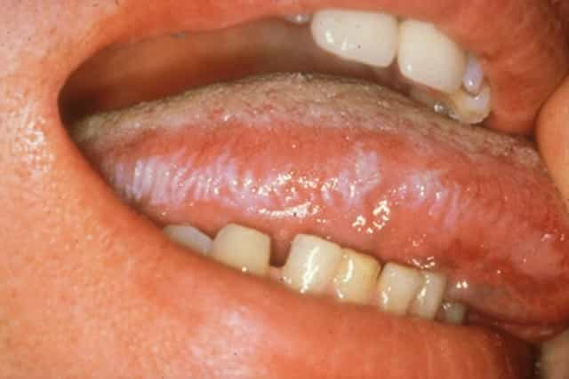 Hairy leukoplakia can cause white spots on tonsils