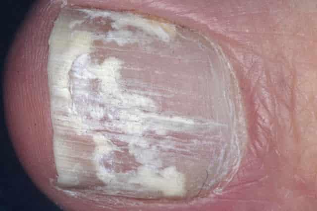 White spots on big toenail