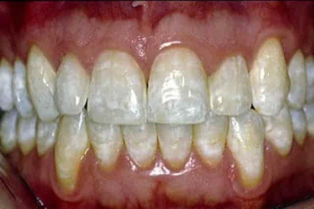 White spots on teeth - mild fluorosis