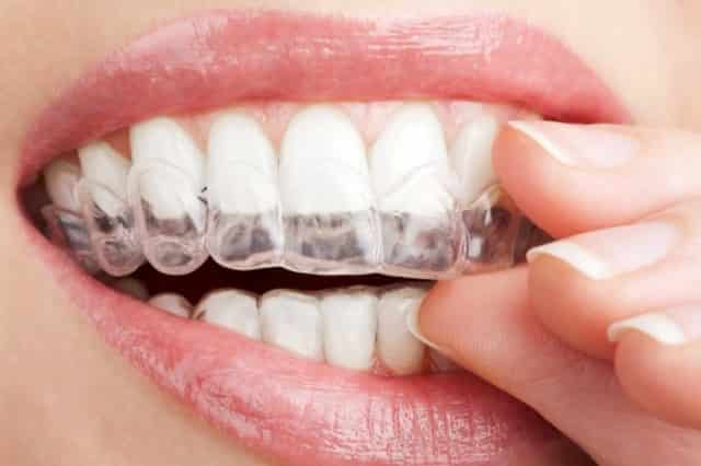 Teeth whitening stripes can cause white spots on teeth