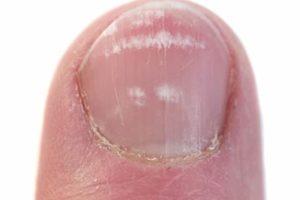 white spots on toenail fungus
