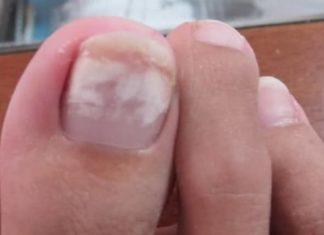 White spots on toenails