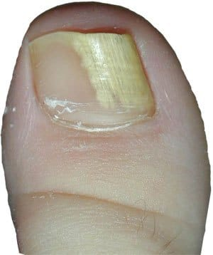 White spots under toenail due to onychomycosis