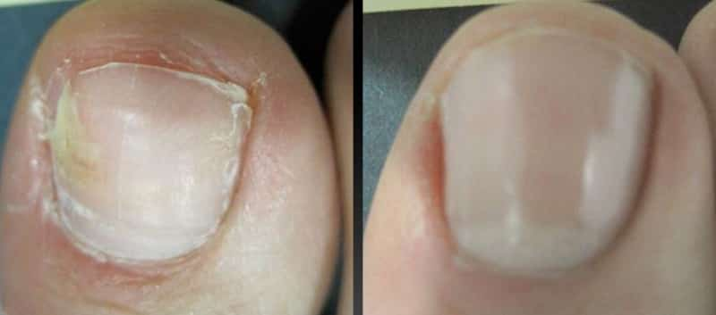 White spots on toenail due to fungus before after laser treatment
