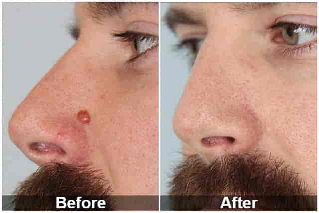 Cryotherapy mole removal before and after