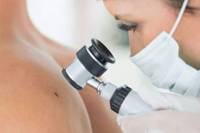 A dermatologist examining a mole before removal