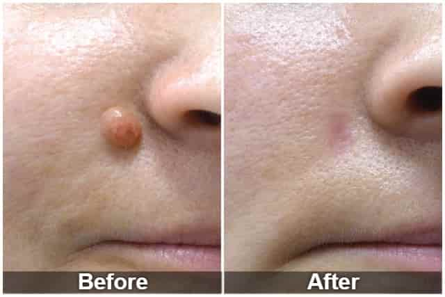 Laser mole removal before and after