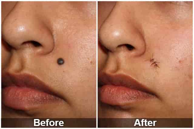 Mole removal surgery before and after