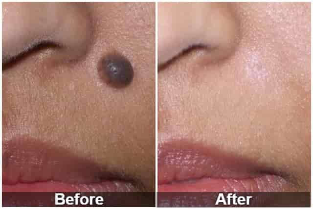 Mole removal by radiosurgery before and after
