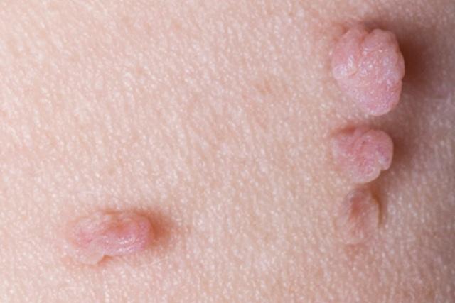 Vaginal Skin Tags 4