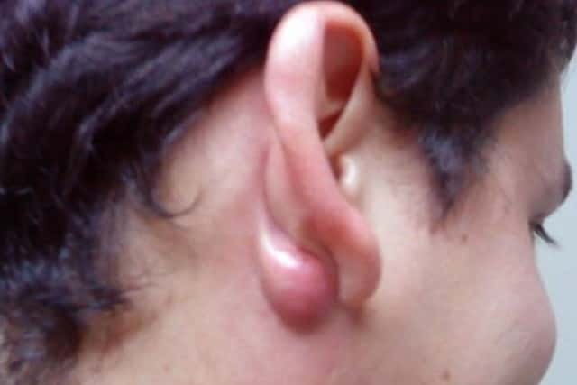 Cyst behind ear