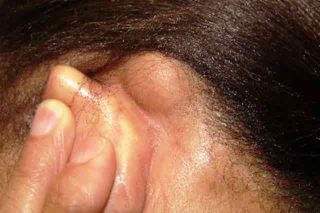 Lipoma behind ear