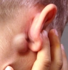 Swollen lymph node behind ear