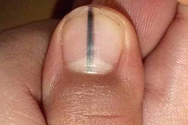 Black ridges in fingernails - thumb