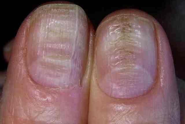 Horizontal Ridges In Fingernails