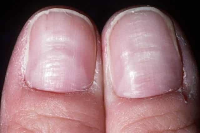 Deficiency Of Certain Nutrients In The Body Can Lead To Ridges Fingernails