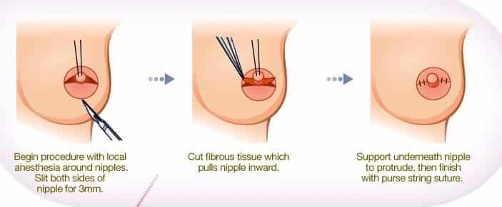 Inverted nipple correction surgery procedure