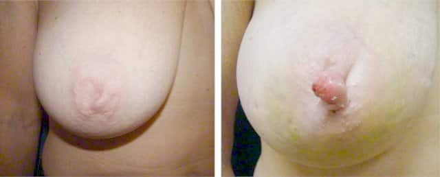 Inverted nipple before & after surgery