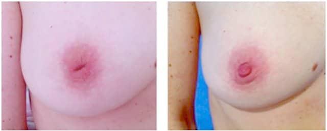Inverted nipples before and after surgery