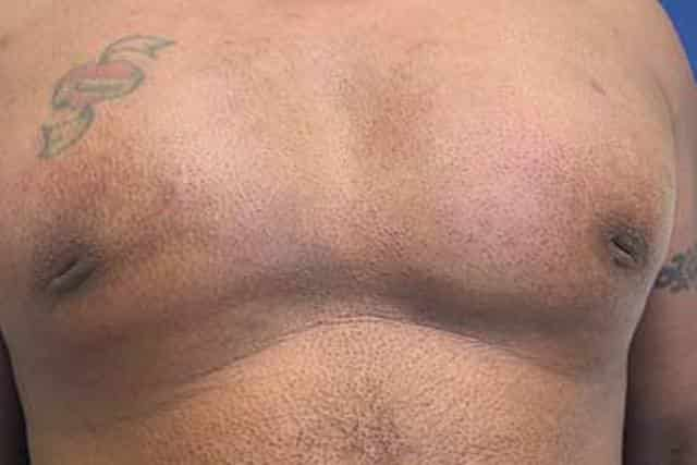 Inverted nipples in male breast
