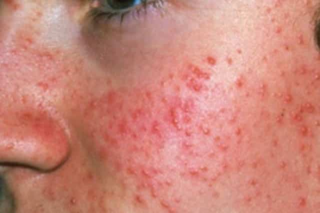 Red spots on skin - acne on face