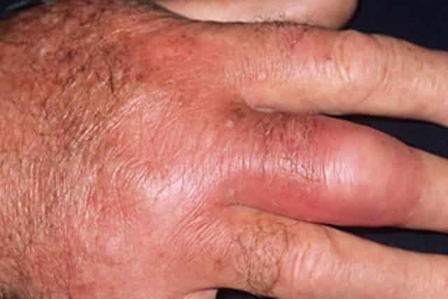 Red spots on skin - cellulitis