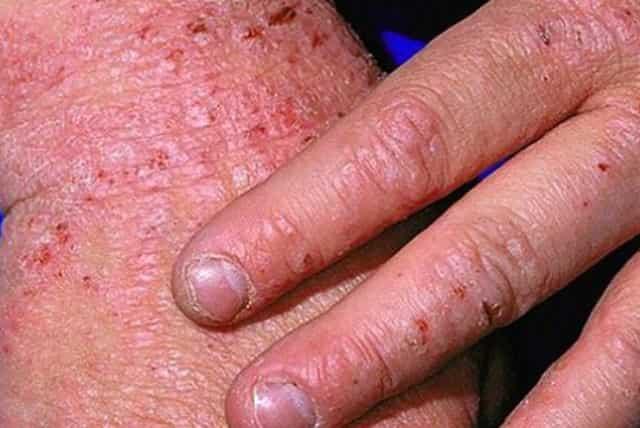 Red spots on skin - eczema