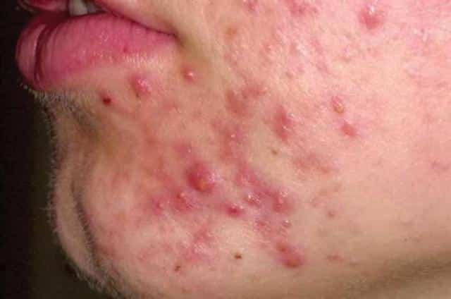 red spots on skin - facial rashes allergies